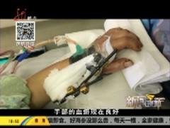 手腕被绞伤 手术很顺利