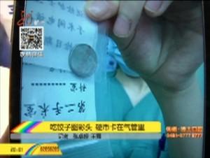 吃饺子图彩头 硬币卡在气管里