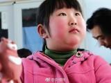 """哈尔滨一小女孩长相酷似""""梦娃"""""""